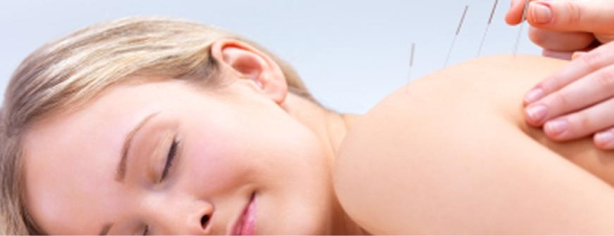 Acupuncture helps the body activating its own natural healing ability